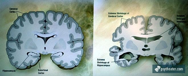 История болезни Альцгеймера