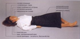эпилепсия приступ